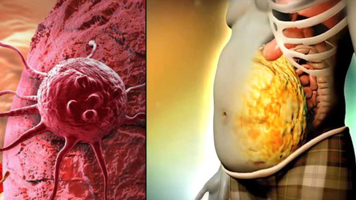 Béo phì dẫn đến ung thư như thế nào? 5 cách phòng chống bệnh (1)