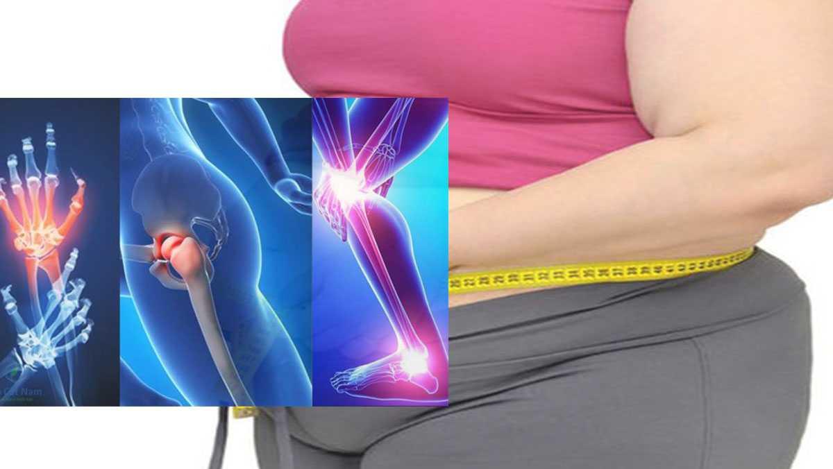Béo phì và viêm khớp dạng thấp có liên quan? 9 biến chứng? (3)