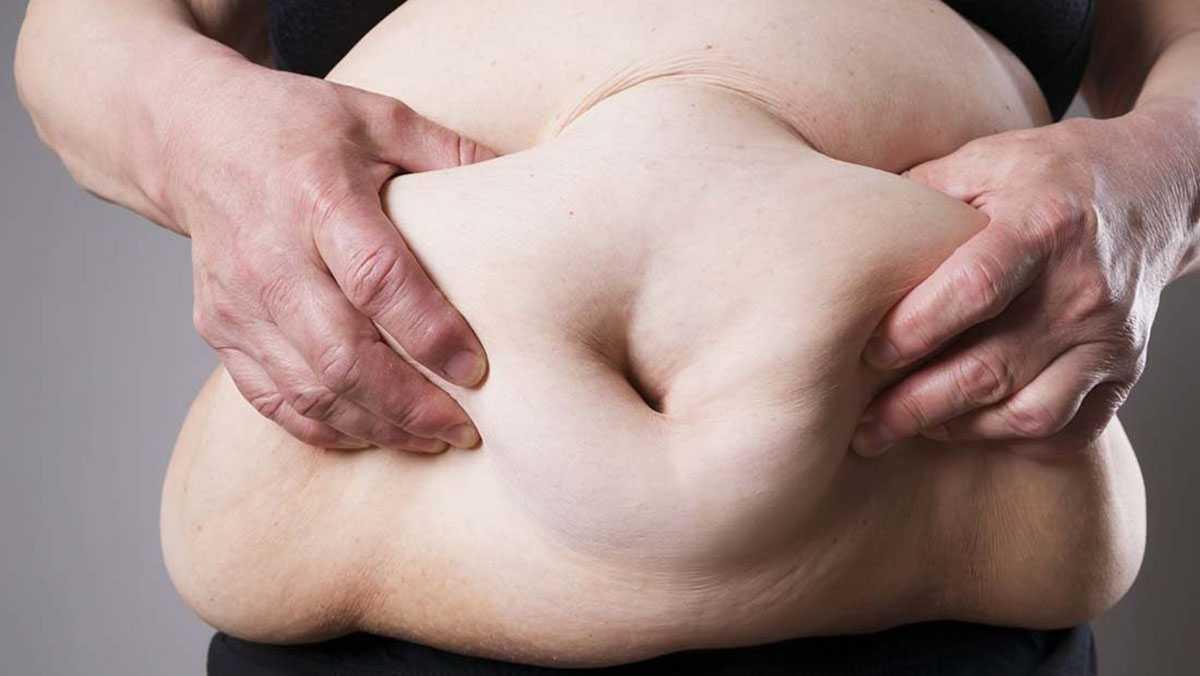 Với ai béo phì là một bệnh