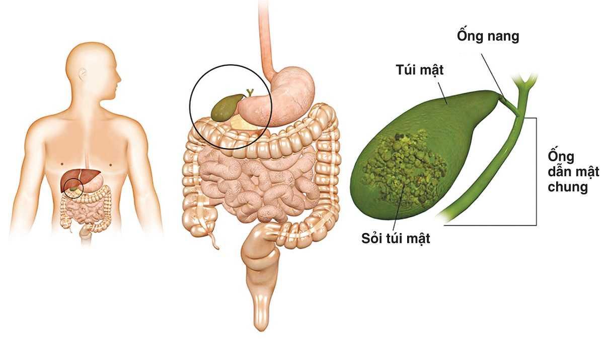 Bệnh Sỏi Túi Mật - Nguyên nhân và 2 phương pháp điều trị (1)