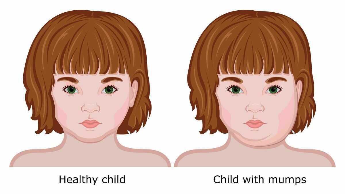 Quai bị và 11 điều cần biết dù bạn đã tiêm vắc-xin (1)