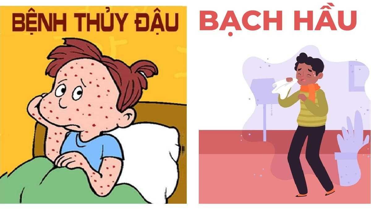 bệnh bạch hầu và thuỷ đậu