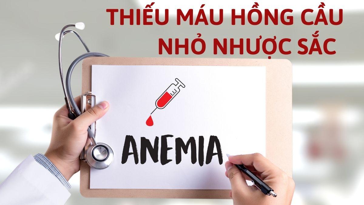 Thiếu máu hồng cầu nhỏ nhược sắc và 3 nguyên nhân gây bệnh phổ biến (1)