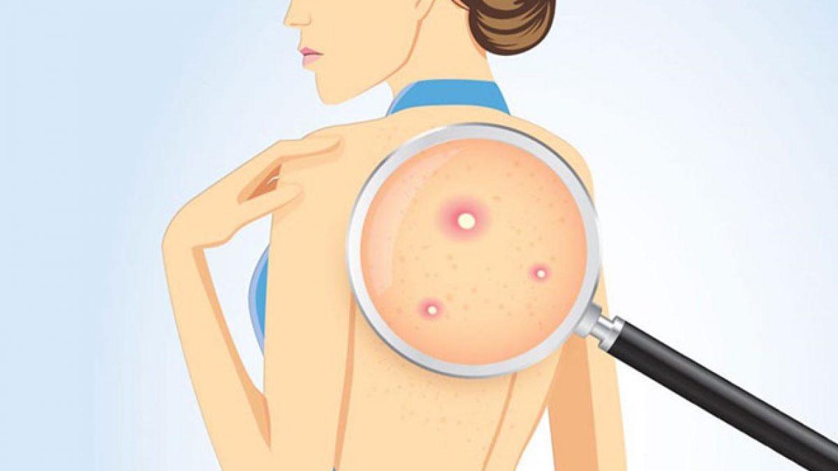 Nguyên nhân và cách điều trị mụn cơ thể (1)